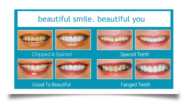dental veneers before and after images