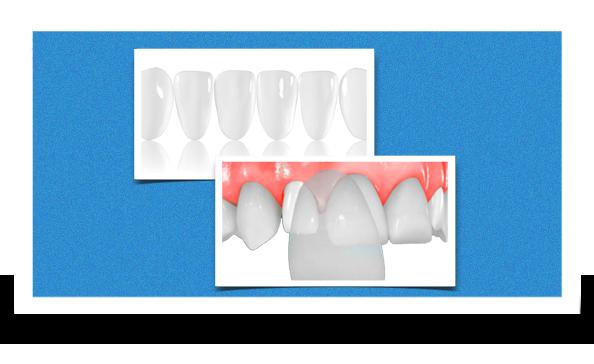 dental veneers together