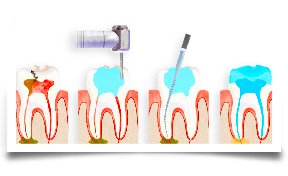 root canal treatment image one