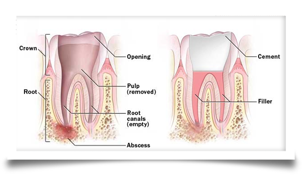 root canal treatment image three