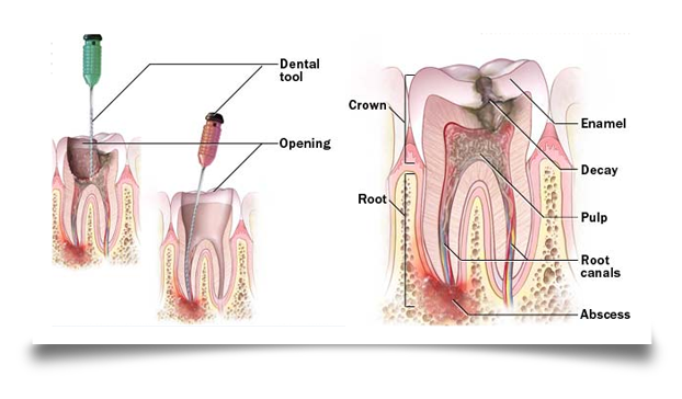 root canal treatment image two