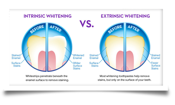 teeth whitening intinsic and extrinsic teeth whitening
