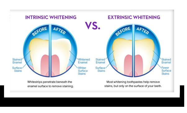 teeth whitening intinsic and extrinsic teeth whitening